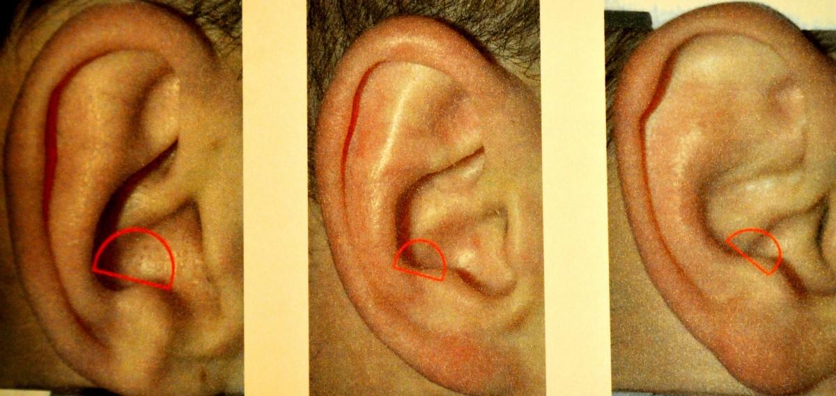 Виды полости ушной раковины